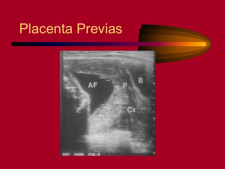 Placenta Previas