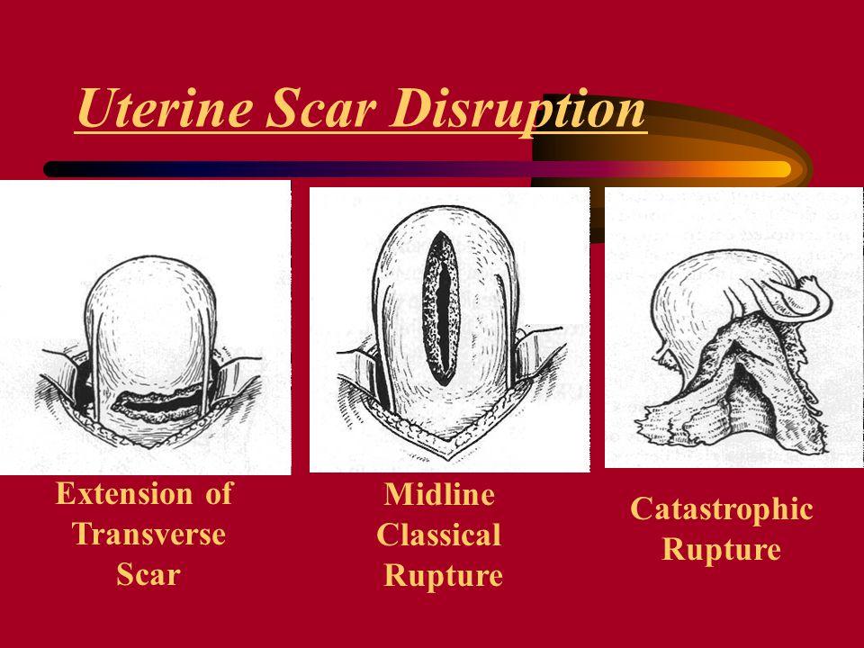 Uterine Scar Disruption