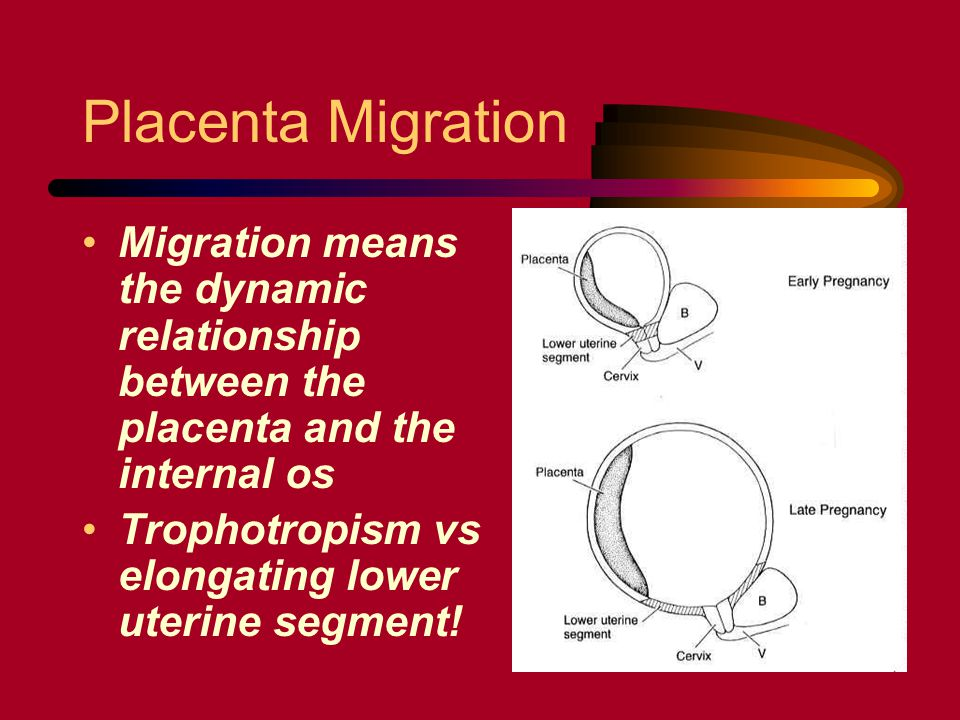 Placenta Migration Migration means the dynamic relationship between the placenta and the internal os.
