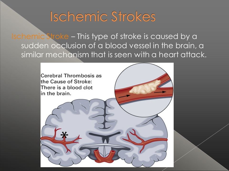 Ischemic Stroke – This type of stroke is caused by a sudden occlusion of a blood vessel in the brain, a similar mechanism that is seen with a heart attack.