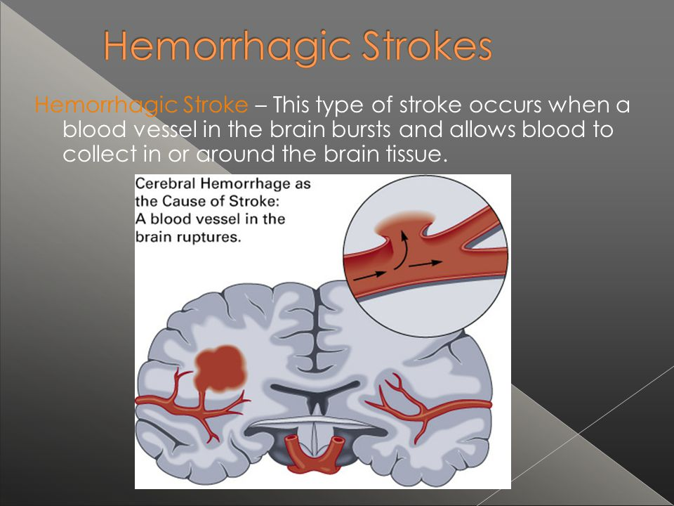 Hemorrhagic Stroke – This type of stroke occurs when a blood vessel in the brain bursts and allows blood to collect in or around the brain tissue.