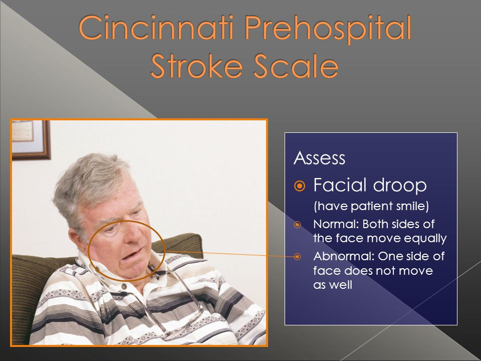 Assess Facial droop (have patient smile)