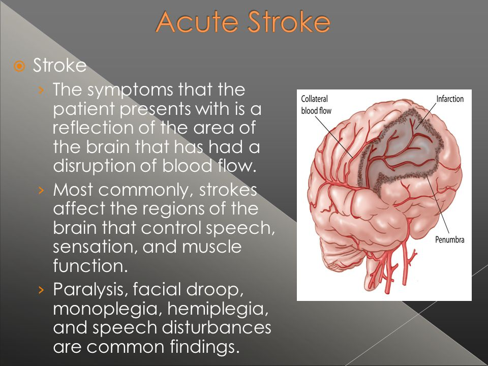 Stroke The symptoms that the patient presents with is a reflection of the area of the brain that has had a disruption of blood flow.