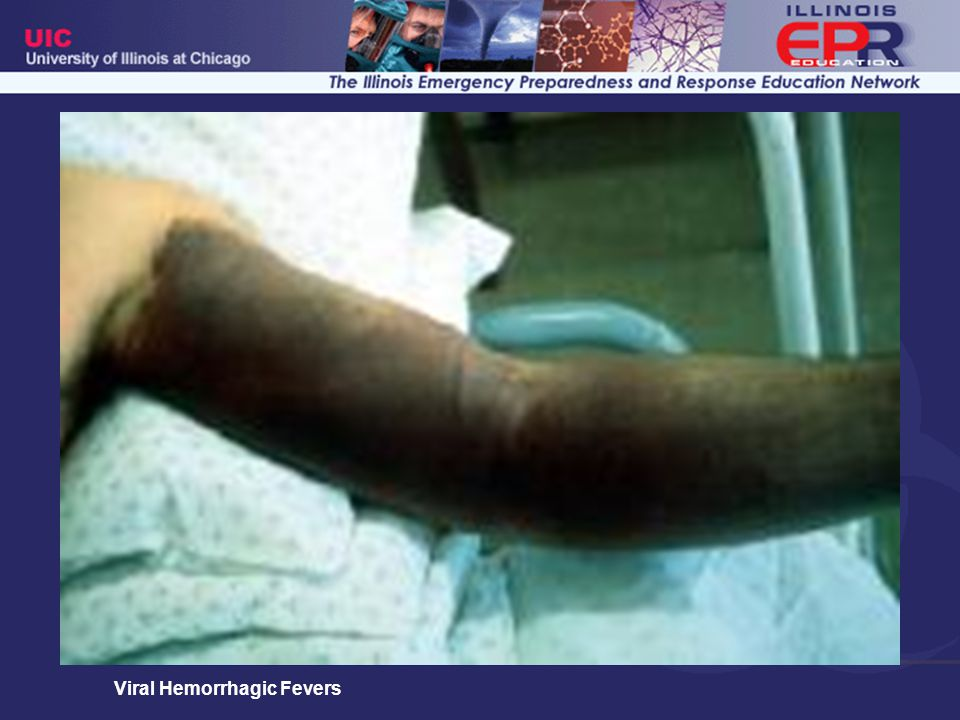 Eccyhmosis encompassing left upper extremity one week after onset of Crimean-Congo Hemorrhagic Fever.