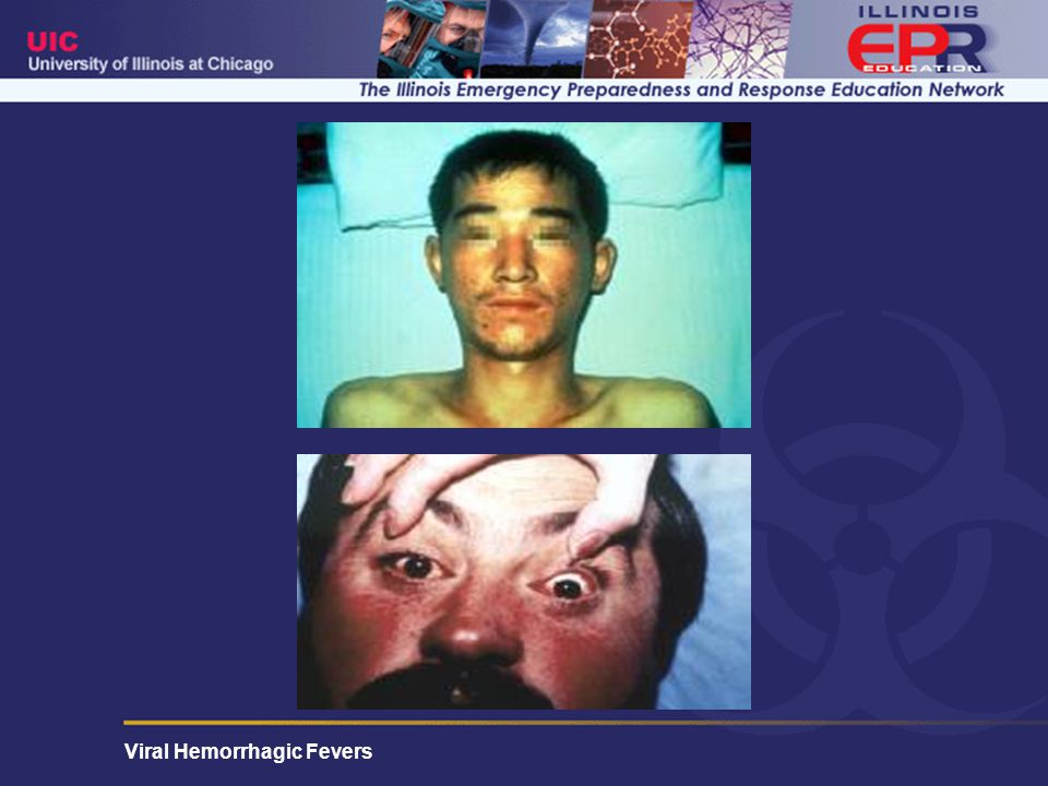 Patients with Korean Hemorrhagic Fever caused by the Hantaan virus with the typical sunburn flush of the cheeks, chin, and base of the neck.