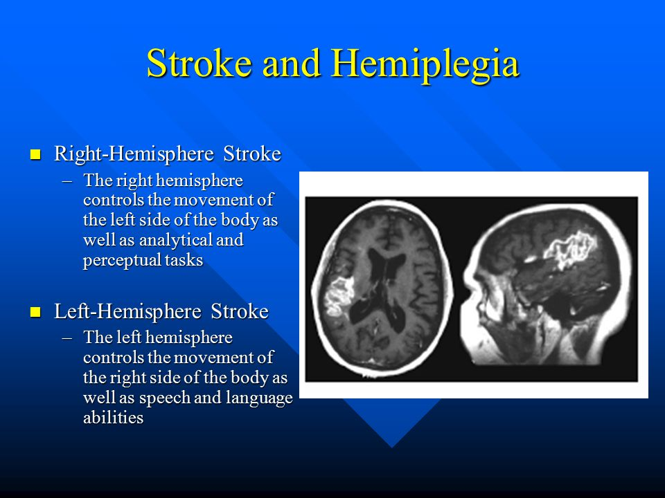 Stroke and Hemiplegia Right-Hemisphere Stroke Left-Hemisphere Stroke