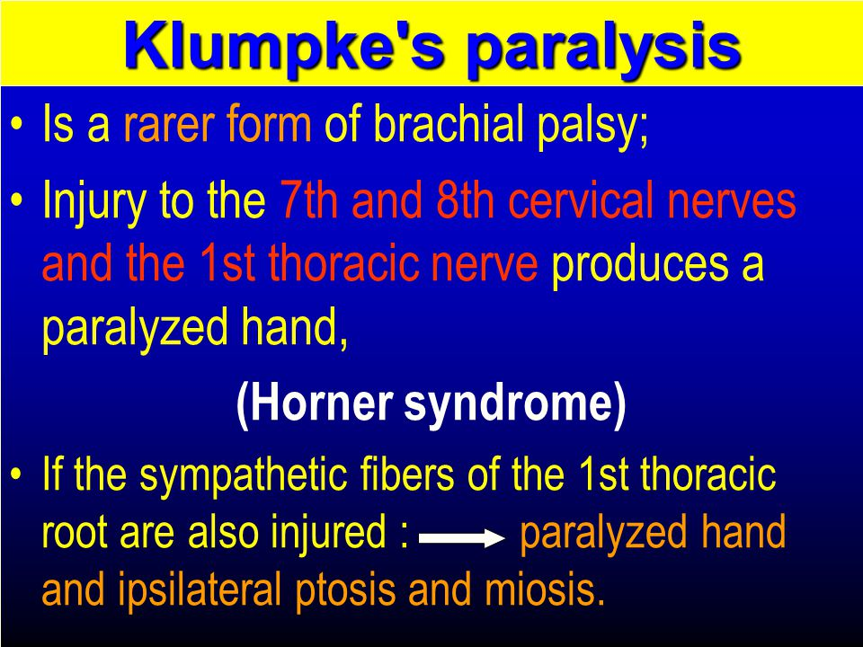 Klumpke s paralysis Is a rarer form of brachial palsy;