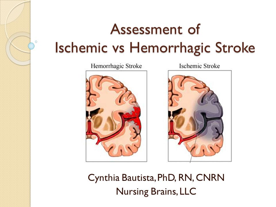 Assessment of Ischemic vs Hemorrhagic Stroke