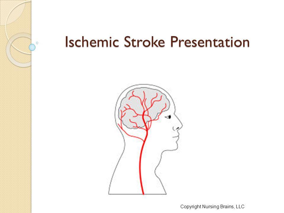 Ischemic Stroke Presentation