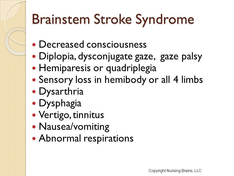 Brainstem Stroke Syndrome