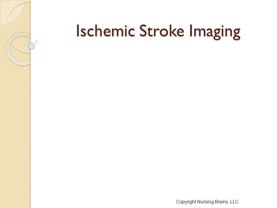 Ischemic Stroke Imaging