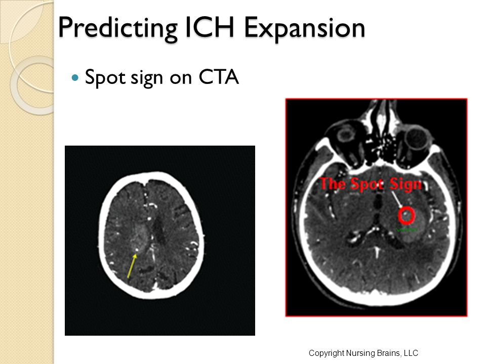 Predicting ICH Expansion
