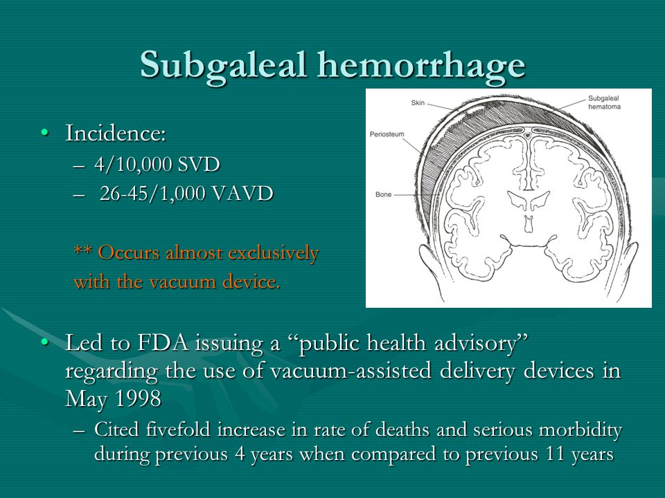Subgaleal hemorrhage Incidence: