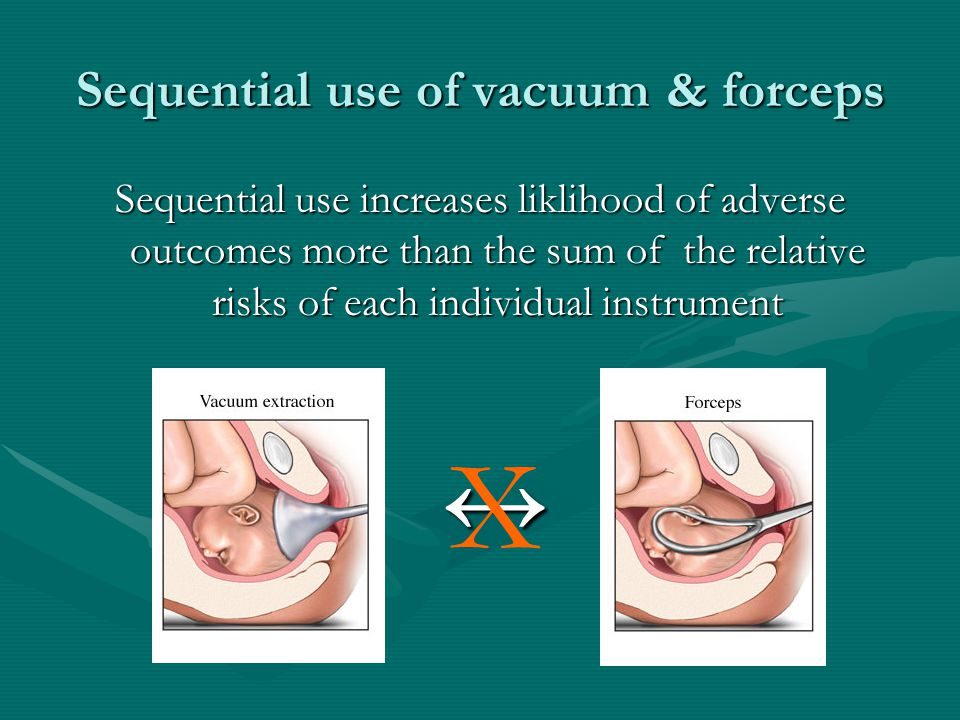 Sequential use of vacuum & forceps