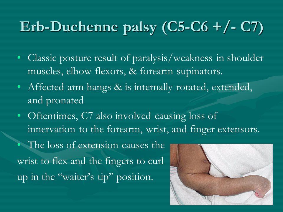 Erb-Duchenne palsy (C5-C6 +/- C7)