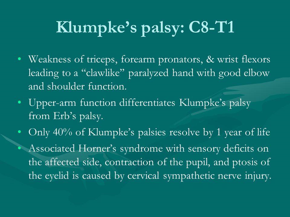 Klumpke's palsy: C8-T1