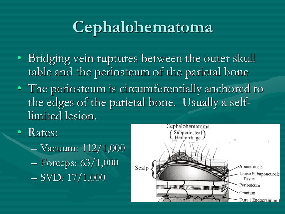 Cephalohematoma Bridging vein ruptures between the outer skull table and the periosteum of the parietal bone.
