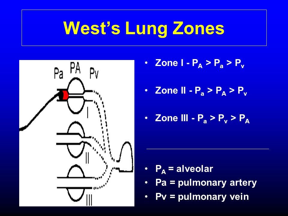 West's Lung Zones Zone I - PA > Pa > Pv