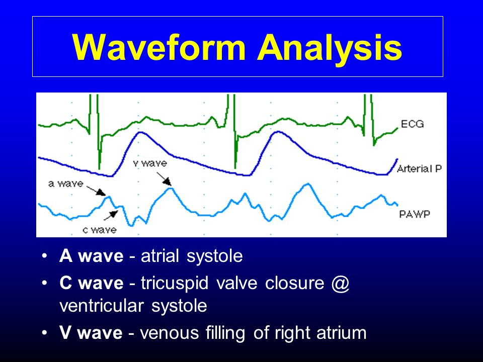 Waveform Analysis A wave - atrial systole