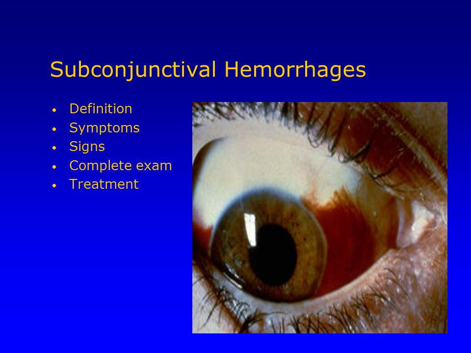 Subconjunctival Hemorrhages