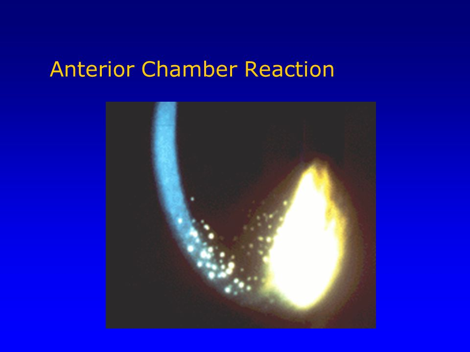 Anterior Chamber Reaction
