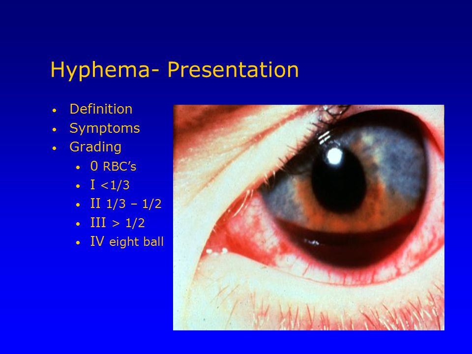 Hyphema- Presentation