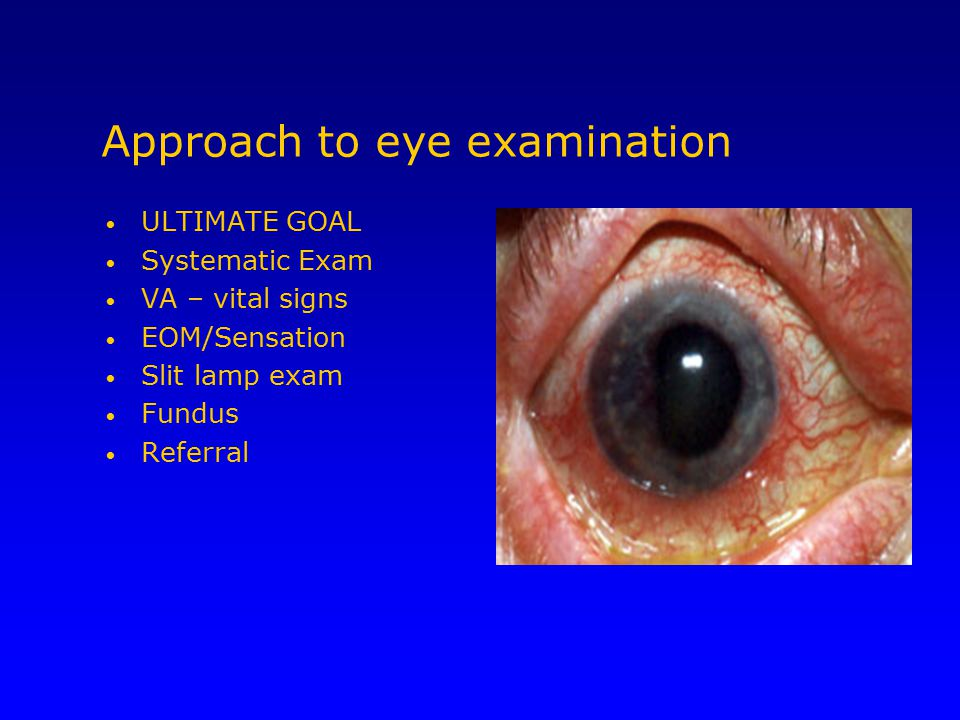 Approach to eye examination