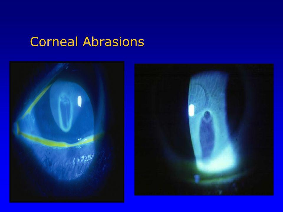 Corneal Abrasions Seidel test… leaking aqueos humor, dx globe rupture.