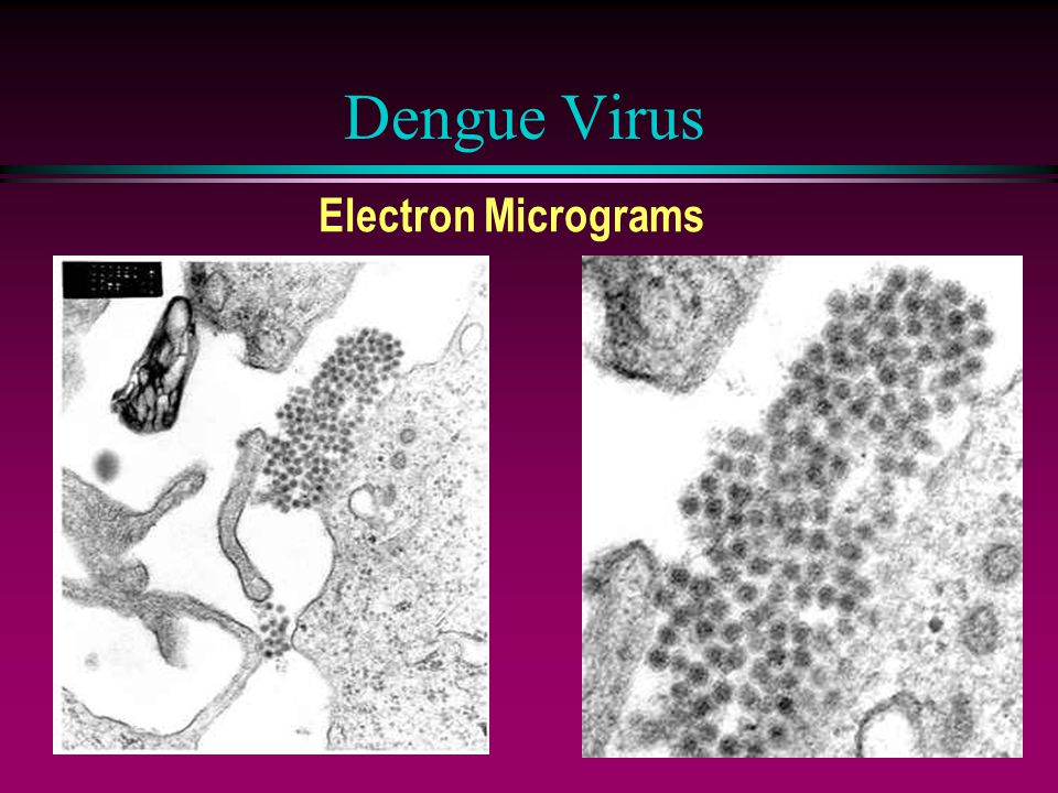 Dengue Virus Electron Micrograms
