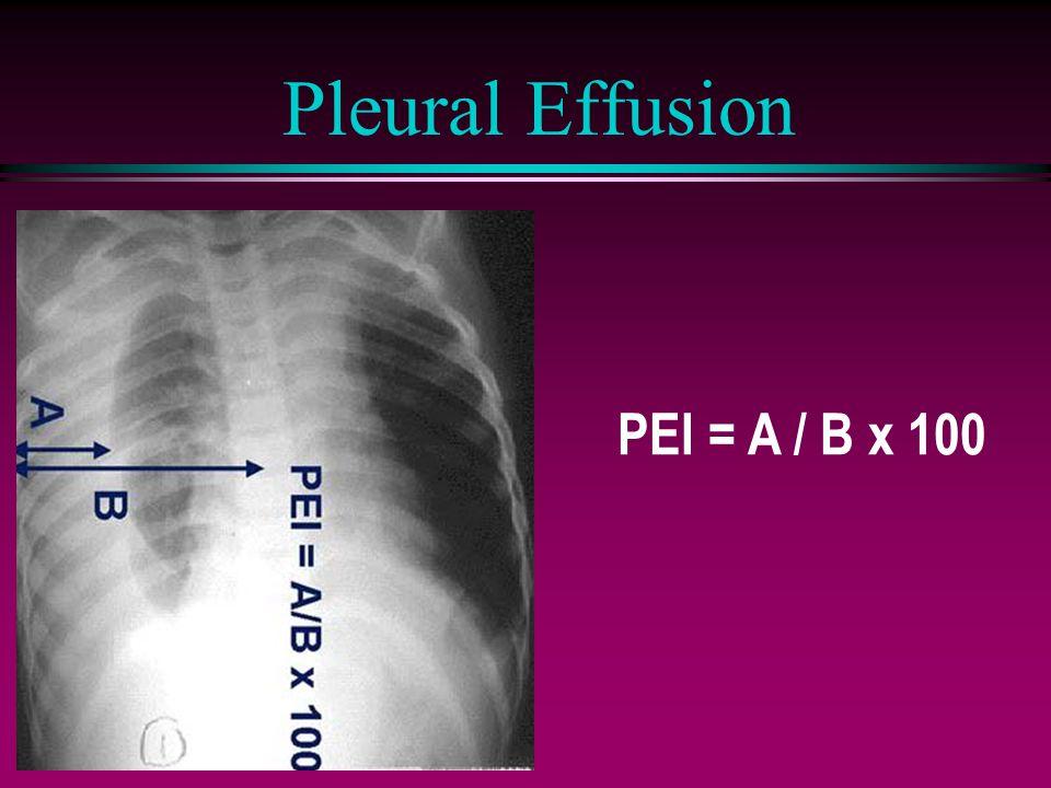 Pleural Effusion PEI = A / B x 100