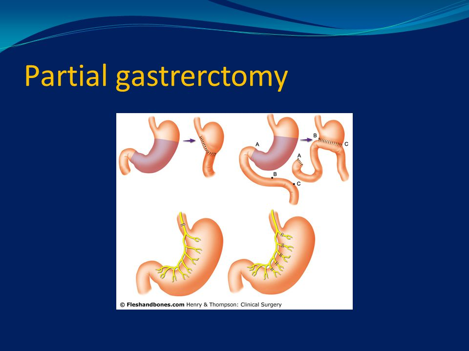 Partial gastrerctomy