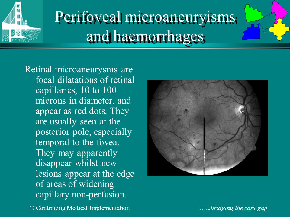 Perifoveal microaneuryisms and haemorrhages