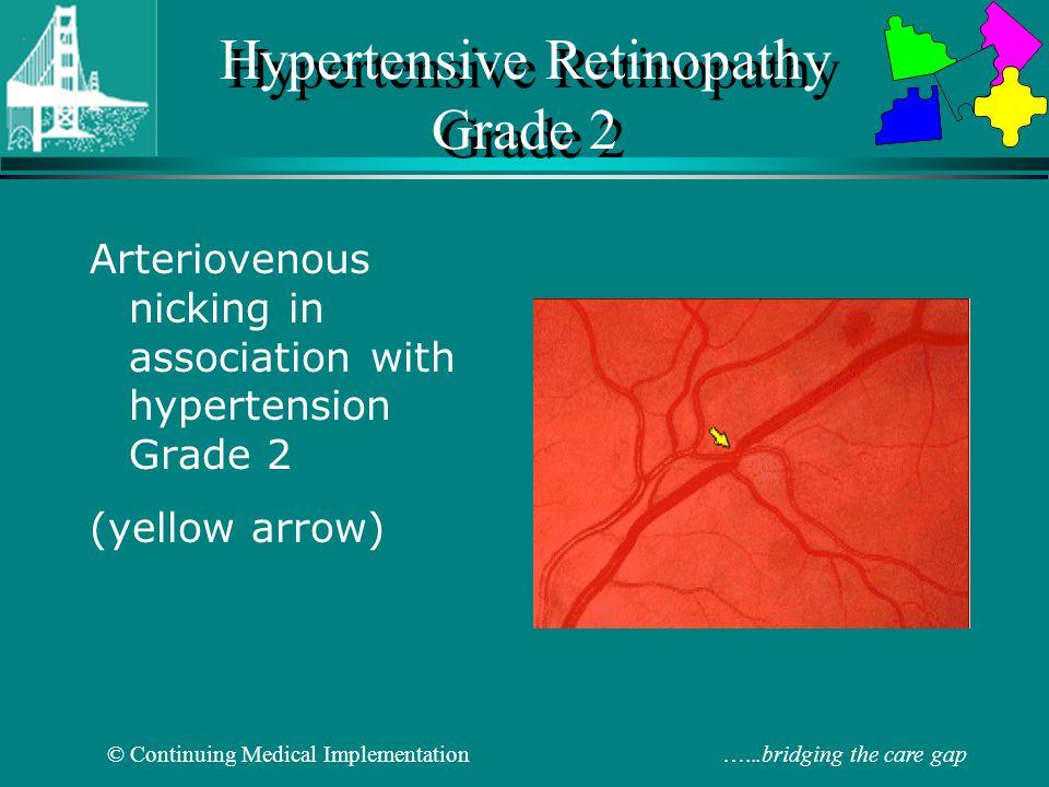 Hypertensive Retinopathy Grade 2