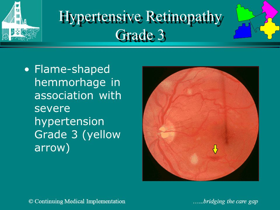 Hypertensive Retinopathy Grade 3