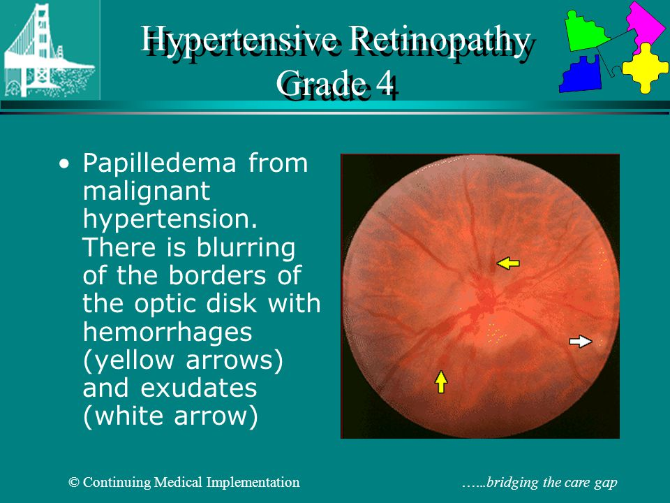 Hypertensive Retinopathy Grade 4