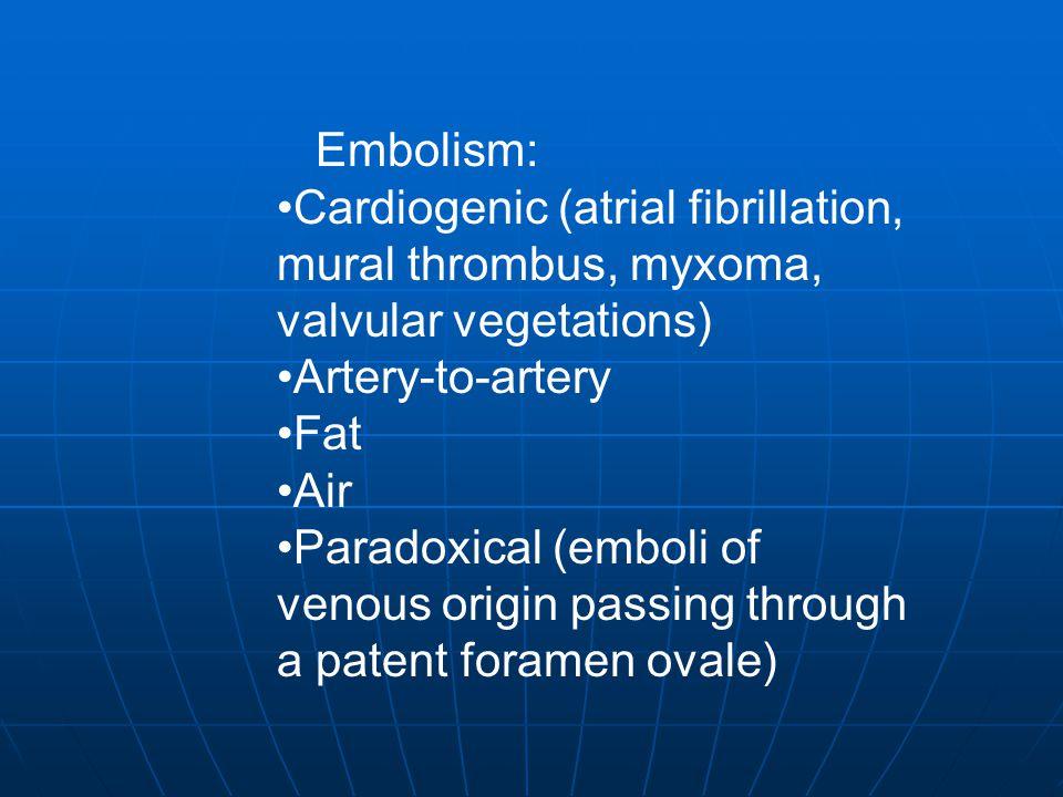 Embolism: Cardiogenic (atrial fibrillation, mural thrombus, myxoma, valvular vegetations) Artery-to-artery.
