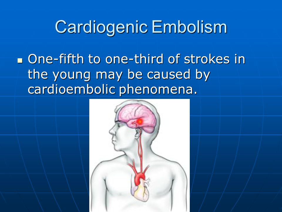 Cardiogenic Embolism One-fifth to one-third of strokes in the young may be caused by cardioembolic phenomena.