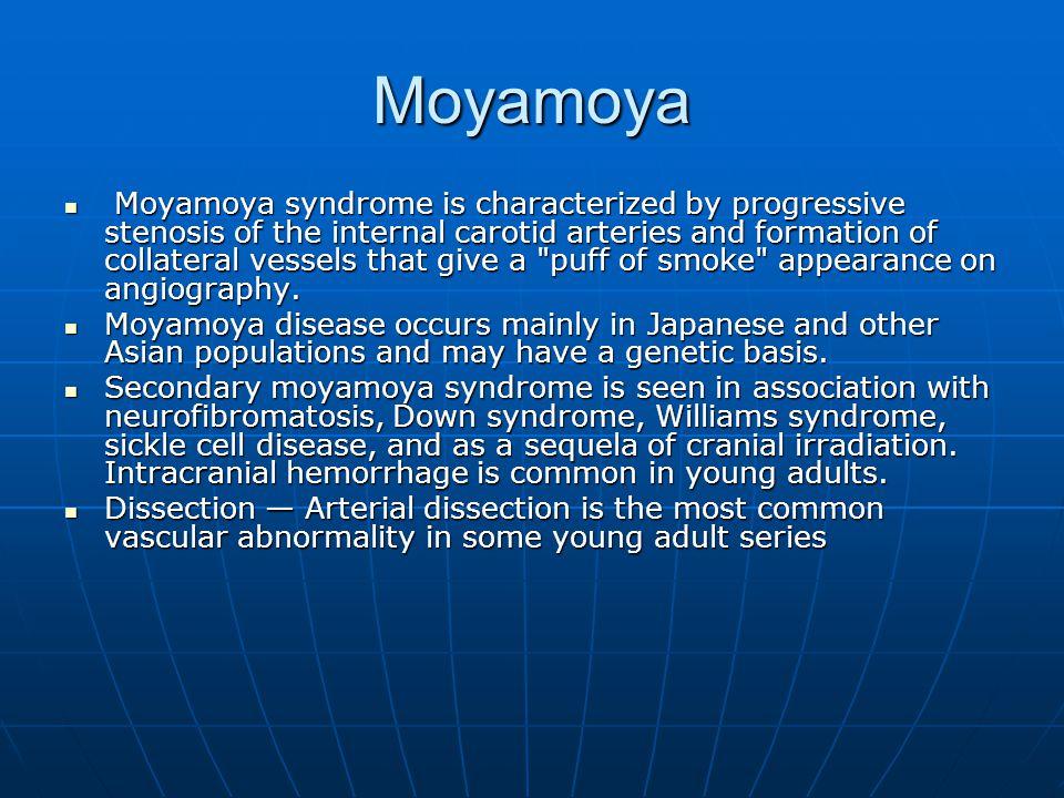 Moyamoya