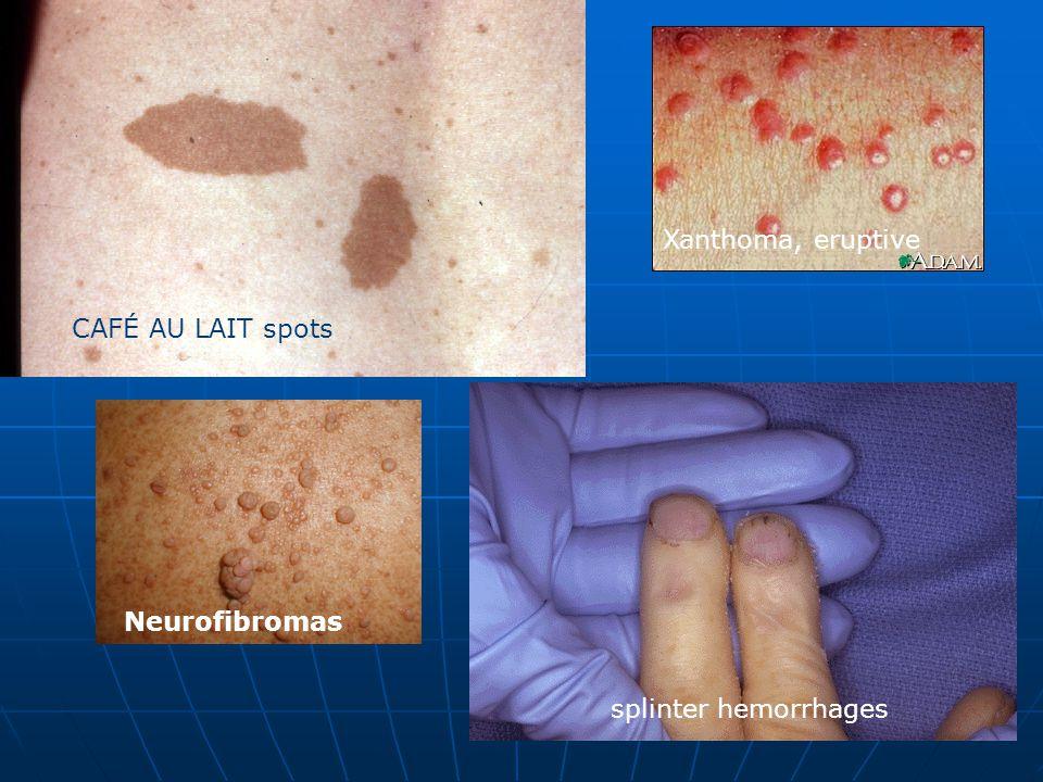 Xanthoma, eruptive CAFÉ AU LAIT spots Neurofibromas splinter hemorrhages