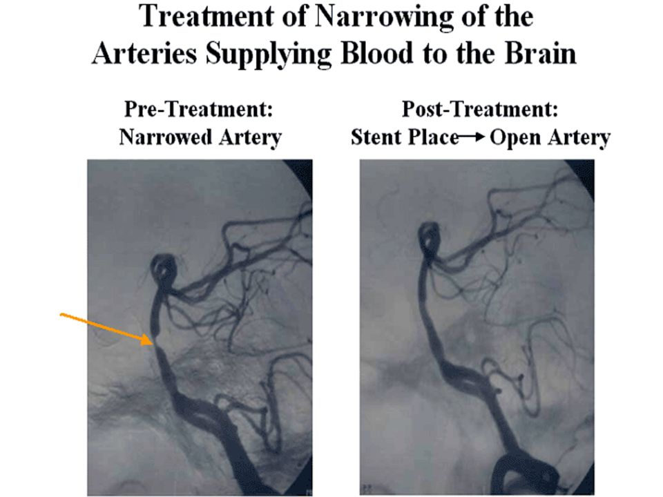 Carotid Artery Stents