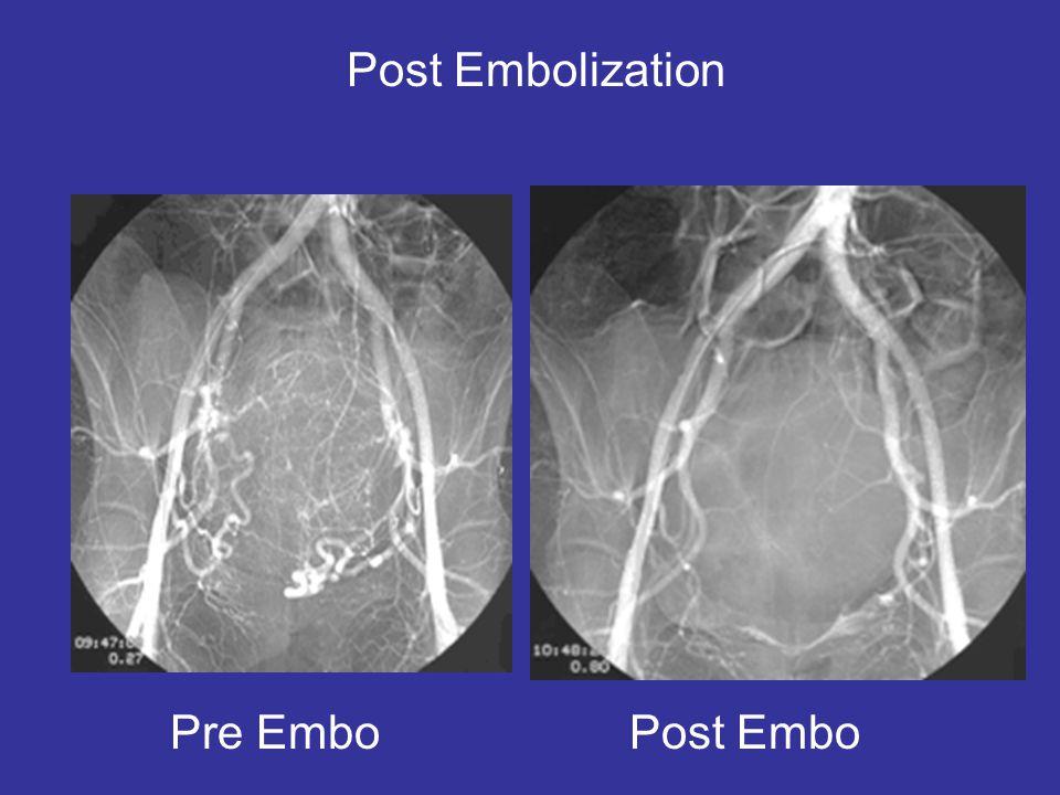 Post Embolization Pre Embo Post Embo