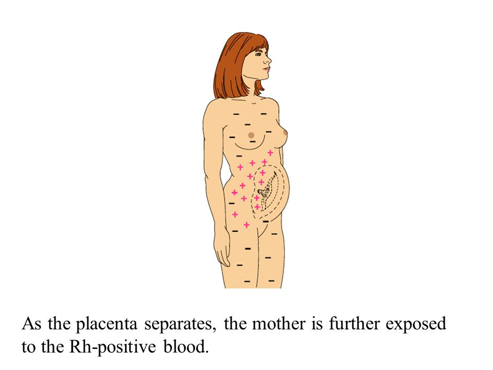 As the placenta separates, the mother is further exposed to the Rh-positive blood.
