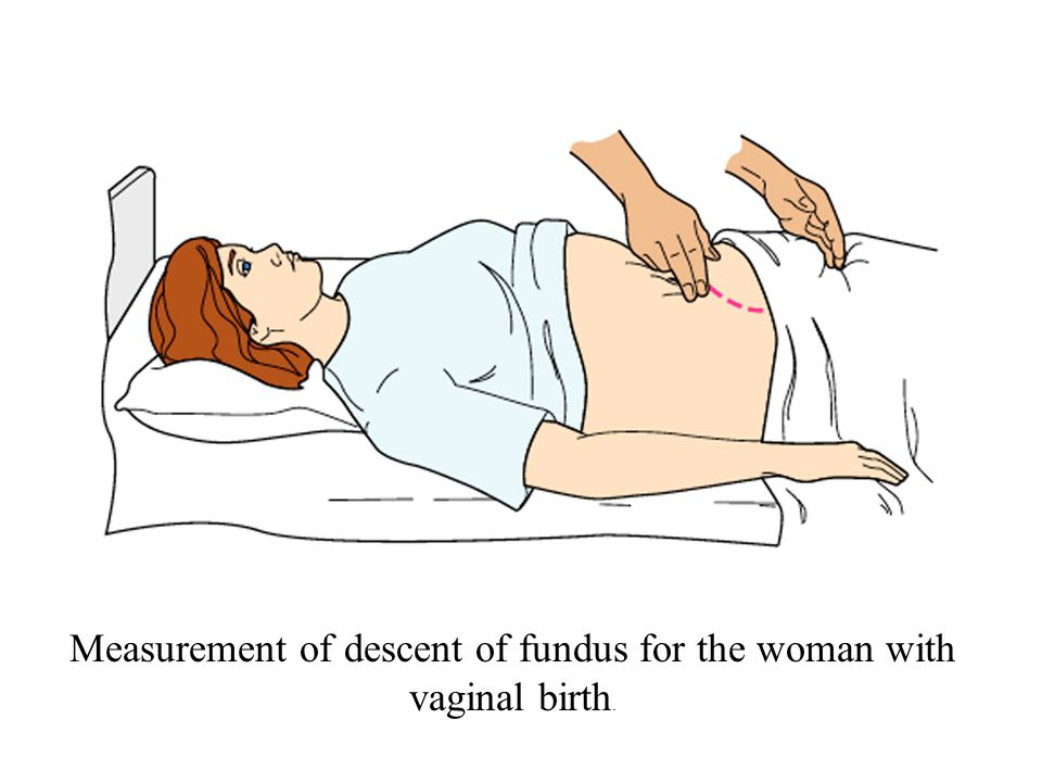 Measurement of descent of fundus for the woman with vaginal birth.