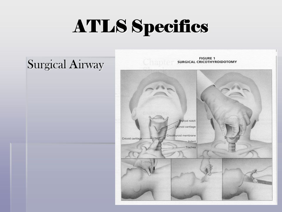 ATLS Specifics Surgical Airway