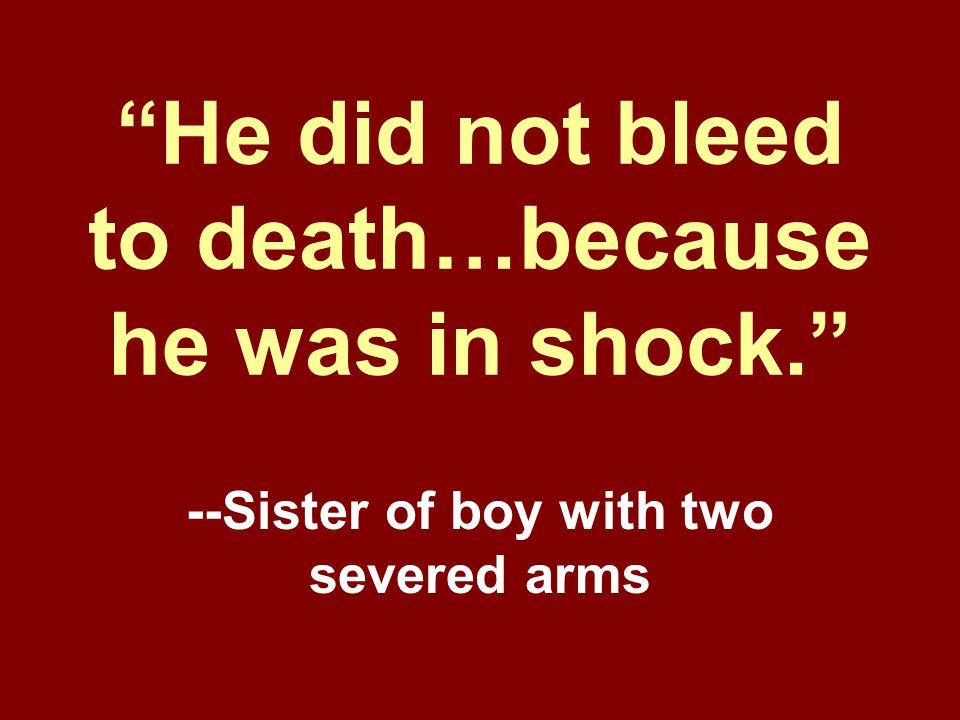 He did not bleed to death…because he was in shock.