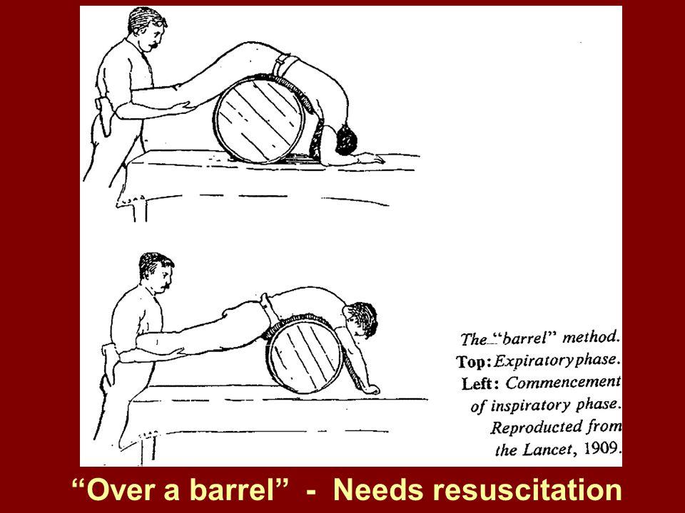 Over a barrel - Needs resuscitation