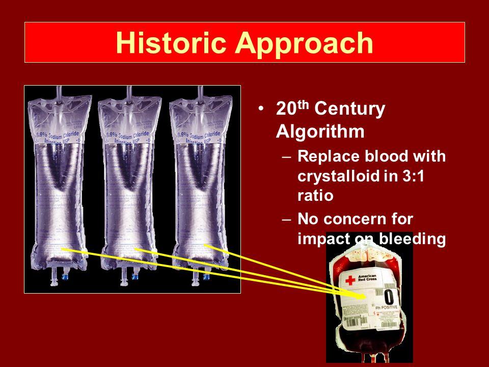 Historic Approach 20th Century Algorithm