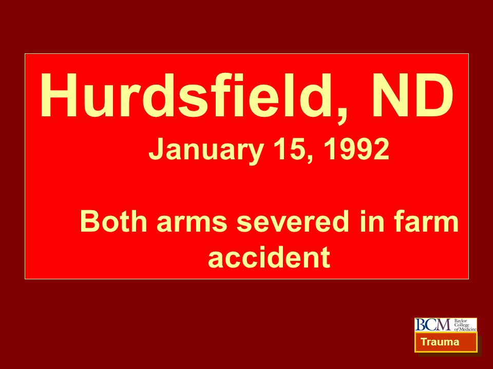 Hurdsfield, ND January 15, 1992 Both arms severed in farm accident