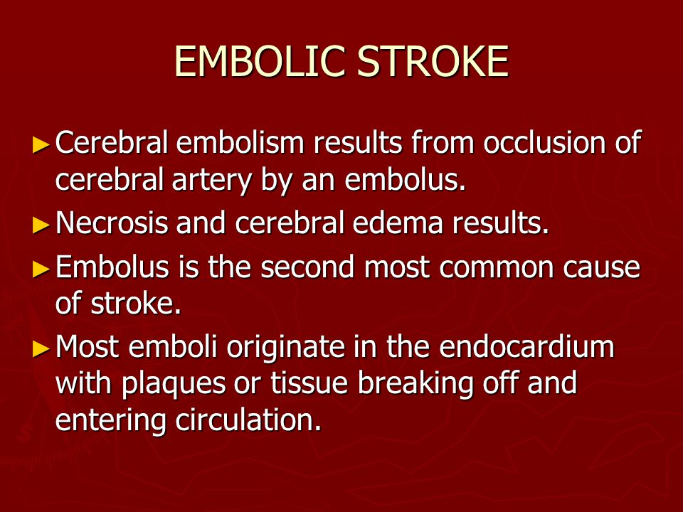 EMBOLIC STROKE Cerebral embolism results from occlusion of cerebral artery by an embolus. Necrosis and cerebral edema results.
