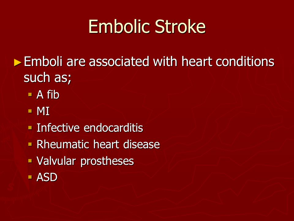 Embolic Stroke Emboli are associated with heart conditions such as;